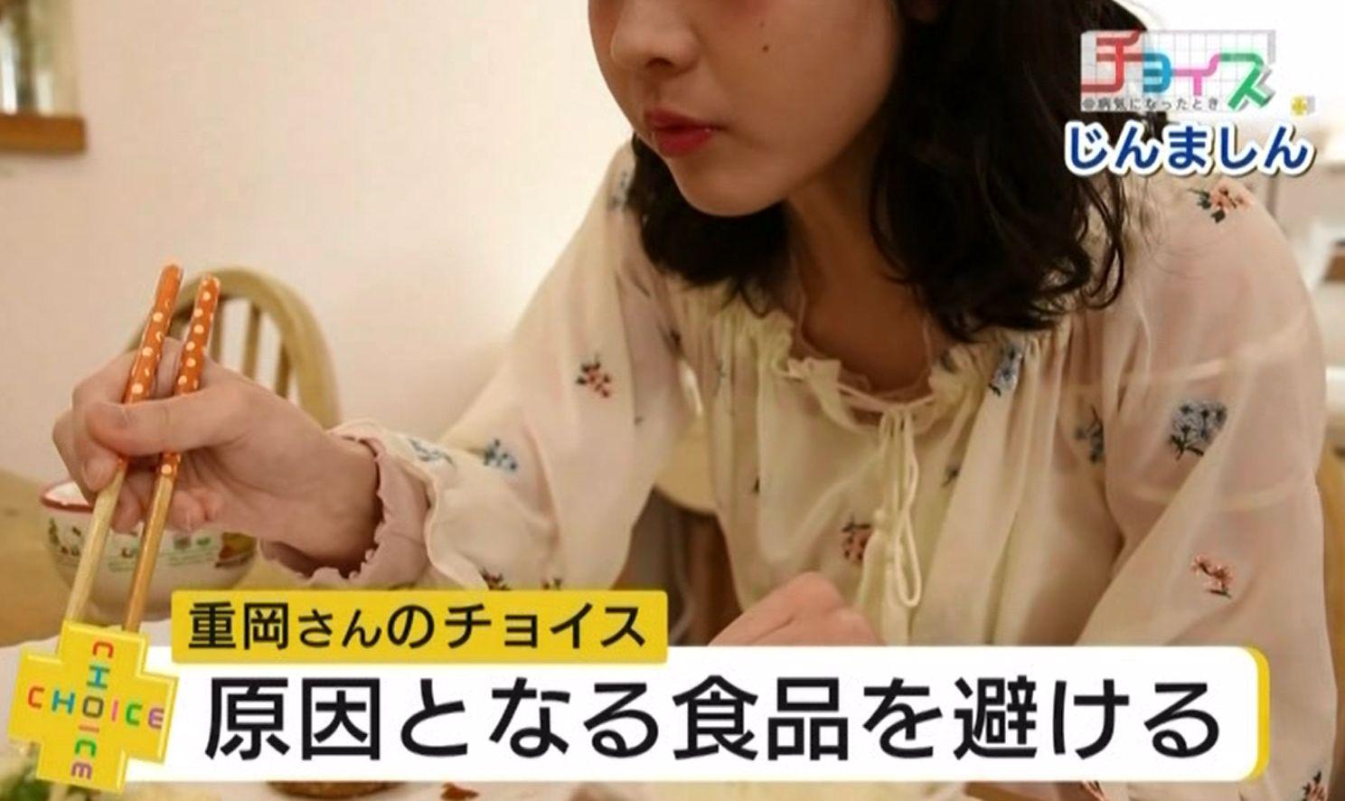 アレルギーによってじんましんが起きる重岡さんは、原因となる食品を慎重に避けるよう注意している