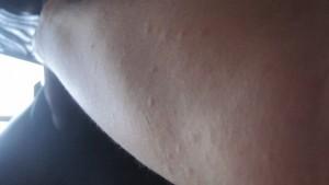 ボコボコと凹凸のある膨疹