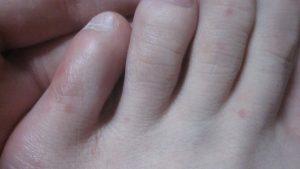 足の指・甲に出た赤くて痒い発疹(コリン性蕁麻疹?)