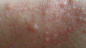 肘(ヒジ)に出てきた謎の痒いブツブツ発疹はコリン性蕁麻疹?それとも虫刺され?見た目も感触も気持ち悪いけどつい触って見てしまう(笑)
