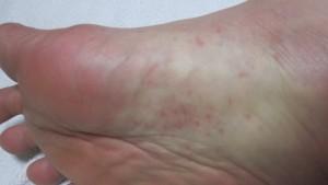 右足の裏にも蕁麻疹の症状が見られる