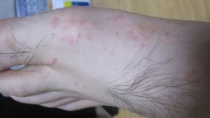 夕食後の読書中に現れた蕁麻疹(じんましん)が死ぬほど痒くて辛い