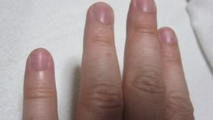 NHKチョイス@病気になったとき コリン性蕁麻疹の辛さで苦しむ女性