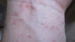 コリン性蕁麻疹は夕方から夜にかけて激しい痒みを伴って現れる!?
