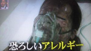 """恐ろしいアレルギー""""スティーブンス・ジョンソン症候群"""""""