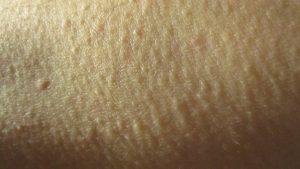 腕の皮膚にブツブツ泡立った鳥肌が立ち、コリン性蕁麻疹も併発する皮膚